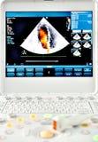 Macchina di ultrasuono Immagine Stock Libera da Diritti