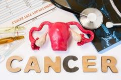 Macica nowotworu pojęcie Anatomiczny kształt macica z jajnikami kłama blisko słowo nowotworu otaczającego setem testy, analiza, l Obraz Royalty Free