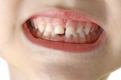 Macro child teeth Royalty Free Stock Image