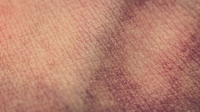 Macro close up of human skin cells, veins. Closeup of human skin, bruises, veins, skin texture Stock Photography