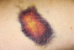 The macro close up view of a bruise on one`s leg royalty free stock images