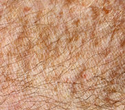 Human Skin and Hair  Stock Photos