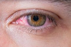 Macro of conjunctivitis red eye Stock Image