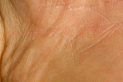 De Textuur van de huid Stock Afbeelding