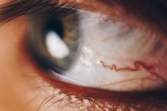 Macro eyes with bursting red blood vessels. eyeball covered with blood close up. vision problems.  stock photos