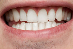 Macro of healthy man teeth. Clean white human teeth in smile Royalty Free Stock Photography