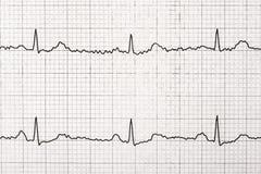 Macro normal de disque d'électrocardiogramme Images libres de droits