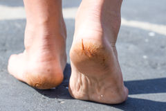 Macro photo of cracked heels. Male back view. Macro photo pair of cracked heels. Male back view Royalty Free Stock Image
