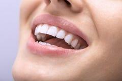 Macro photo of white teeth Stock Image