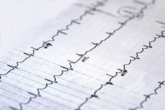 A macro picture of the EKG chart. Focused on the aVL value Stock Photos