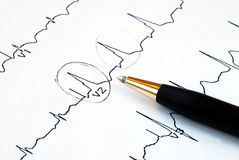 Macro picture of the EKG chart royalty free stock photography