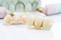 Macro of prosthetic teeth on a white background Stock Photos