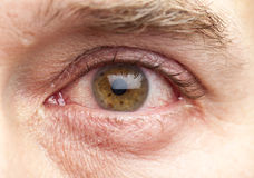 Macro shot human eye. Macro shot of a human eye of a 40-year old man with brown iris and a slight infection Royalty Free Stock Image