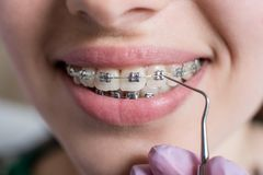 Macro shot of white teeth with braces. Female patient with metal brackets at the dental office. Orthodontic Treatment. Stock Image