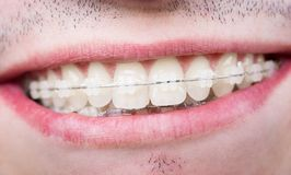 Macro shot of white teeth with braces. Smiling male patient with metal brackets Stock Photos