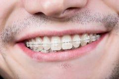 Macro tir des dents blanches avec des accolades Patient masculin de sourire avec des parenthèses en métal image stock
