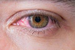 Macro van bindvliesontstekings rood oog stock afbeelding