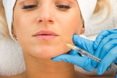 Macro view of young woman face, injection, beauty treatment Royalty Free Stock Photo