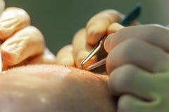 Macrophotography шарика волос трансплантированного в безволосую область Обработка плешивости Трансплантат волос Хирурги в стоковые изображения rf