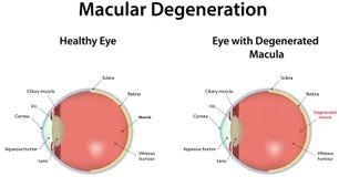 Macular Degeneration vektor abbildung