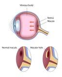 Macular hole royalty free illustration