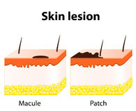 Macule and Patch. Types of skin lesions Royalty Free Stock Images