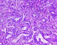 Mag- adenocarcinoma av en människa arkivbilder
