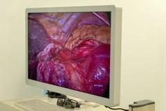 Mage do processo da operação dentro do abdômen do paciente no monitor ou na tevê a alta definição O trabalho da utilização dos ci fotos de stock