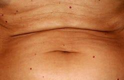 Magen är i röda angiomas Sladdrig rynkig mage Naveln sträcks Royaltyfri Fotografi