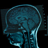 Magnetic Resonance of Brain Stock Images