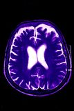 Magnetic Resonance of Brain, blue Stock Photos