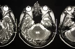 Magnetic Resonance Of Brain, MR royalty free stock photo
