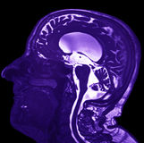Magnetic Resonance of Brain Stock Photos