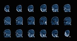Magnetic resonance image MRI of the brain stock images