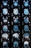 Magnetic resonance image MRI of the brain stock photo