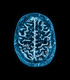 Magnetic resonance image (MRI) of the brain stock image