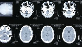 Magnetic resonance images Stock Photos
