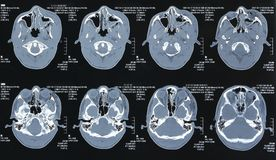 Magnetic resonance images Royalty Free Stock Image