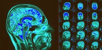 Magnetic resonance imaging of the brain. MRI scan. Magnetic resonance imaging of the brain with no visible abnormalities. MRI in different views royalty free stock photography