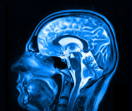 Magnetic resonance imaging of the brain Royalty Free Stock Photo