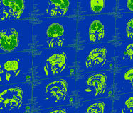 Magnetic resonance imaging of the brain Royalty Free Stock Photography