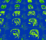 Magnetic resonance imaging of the brain Stock Images