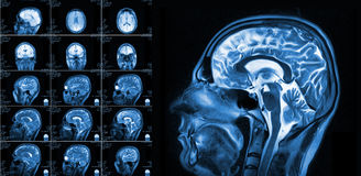Magnetic resonance imaging of the brain. With no visible abnormalities. MRI in different views Stock Photo