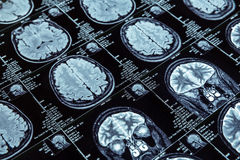 Magnetic resonance imaging Stock Images