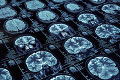 Magnetic resonance imaging Stock Photography