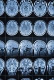 Magnetic resonance imaging of the head and brain, MRI royalty free stock photo