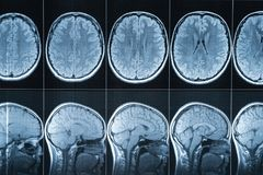 Magnetic resonance imaging of the head, MRI royalty free stock photography