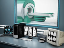 Magnetic Resonance Imaging MRI device and computer systems.  Royalty Free Stock Photo