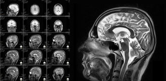 Free Magnetic Resonance Imaging Of The Brain Royalty Free Stock Photo - 79239865