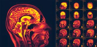 Free Magnetic Resonance Imaging Of The Brain. MRI Scan Royalty Free Stock Photography - 136679807